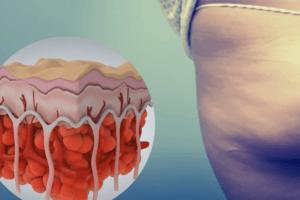 Celulite: como surge e de que maneira está sendo o atual tratamento que vem se destacando